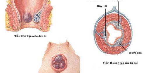 Triệu chứng của Bệnh trĩ nội