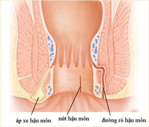 Triệu chứng bệnh Rò hậu môn